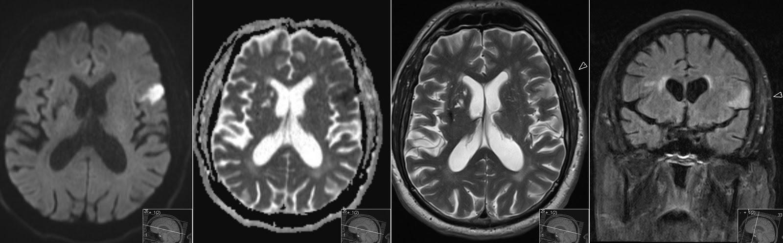 Radiology MRI: Broca\'s Infarct