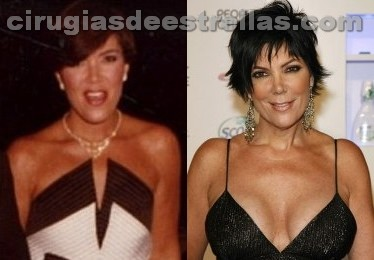 Kris Jenner cirugia