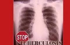 RAMUAN TRADISIONAL (HERBAL) MENGOBATI PENYAKIT PARU-PARU (TBC)