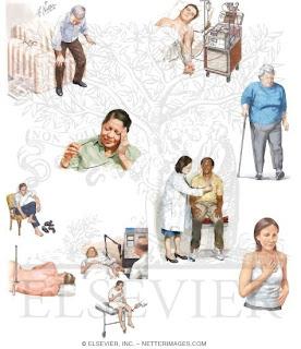 Sindrome de imobilidade em idosos hospitalizados com doença de alzheimer 3