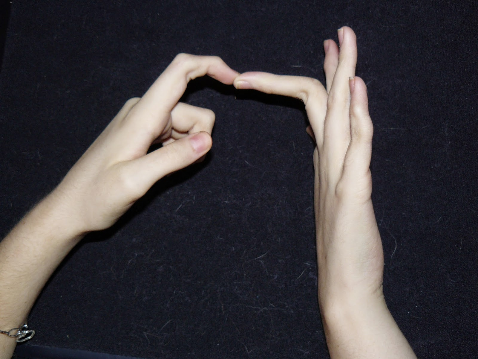 Ehlers danlos syndrome hand pictures Amanda Blu