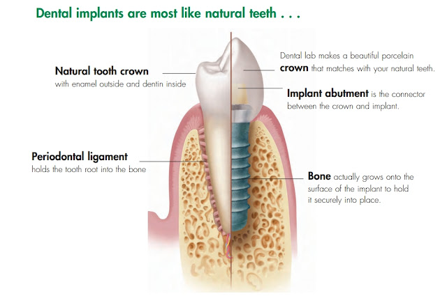 http://www.implantdentistindia.com/need-of-implant/
