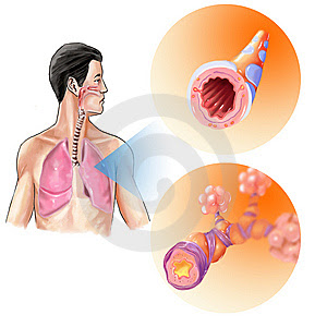 Nursing Care Plan for Bronchitis