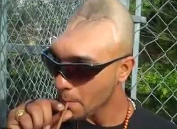 Мужик пообил голову палкой