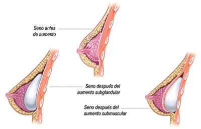 Resultados del aumento mamario y los implantes