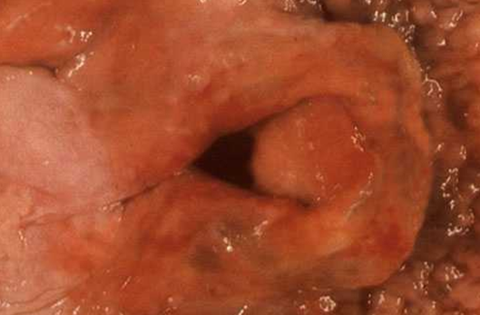 Mouth Aphthous ulcer: