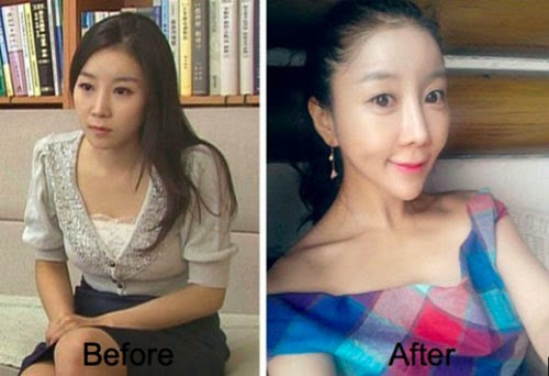 Beautiful South Korean Girl before and after Plastic Surgery