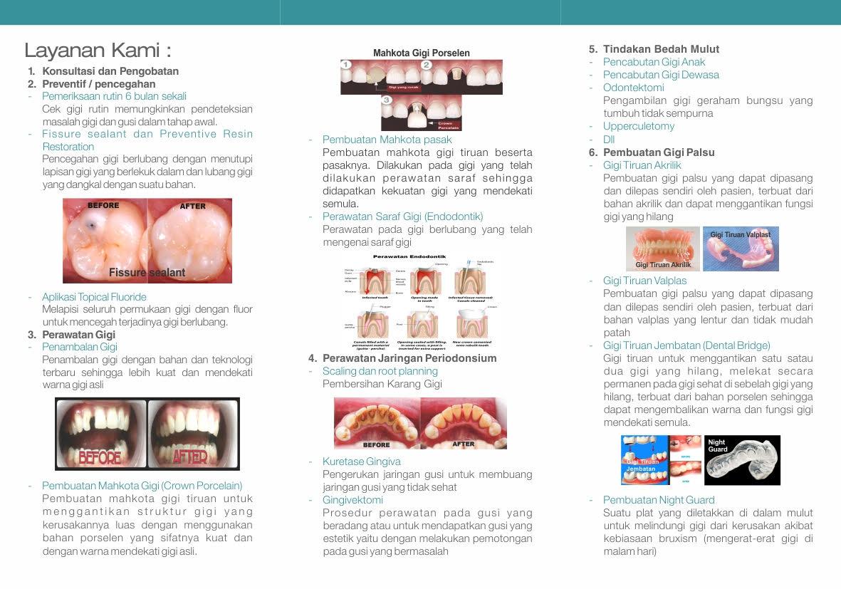 Poli Gigi Kusuma Medical Center  Tips Menjaga Kesehatan Gigi Anak a980a0445e