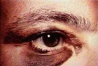 Katarak yaitu bab dalam lensa mata yang berkabut BLOG PAGE ONE GOOGLE | Resep Tanaman Herbal Untuk Obati Katarak
