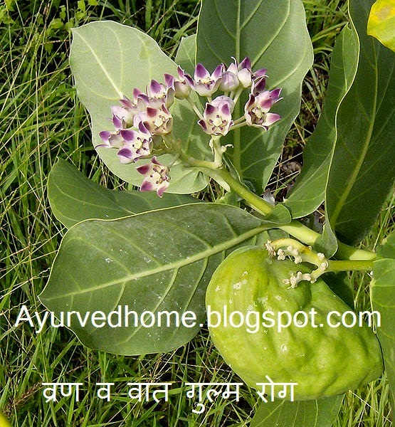 Vata tumor or Ulcer cure with madar plant , व्रण व वात गुल्म रोग