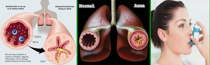 Cara Menyembuhkan Penyakit Sesak Nafas