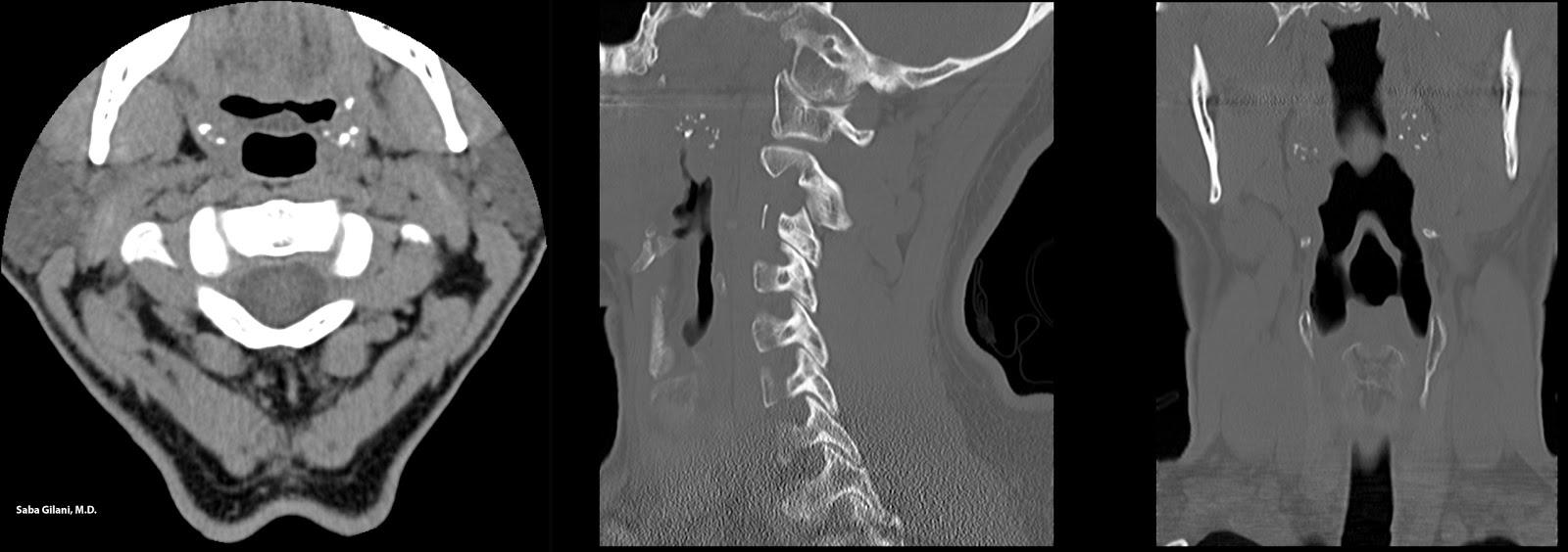Tonsil Stones Symptoms Stiff Neck