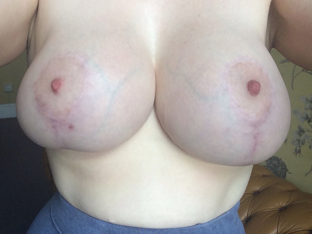 Breast Lift with Implants Before & After Pictures - RealSelf