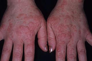 Herpes En Las Manos