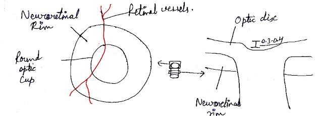 open-angle-glaucoma