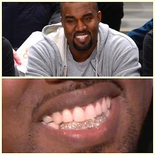 Kanye West Pasang Berlian di Gigi