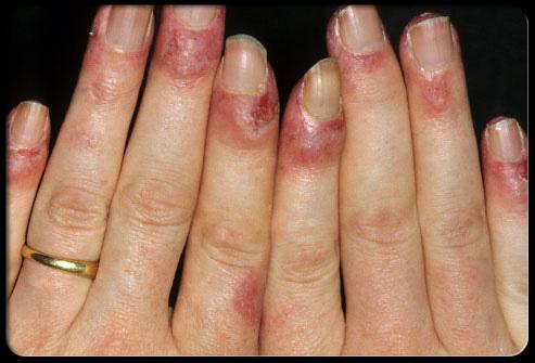 Фото болезнь ногтей рук