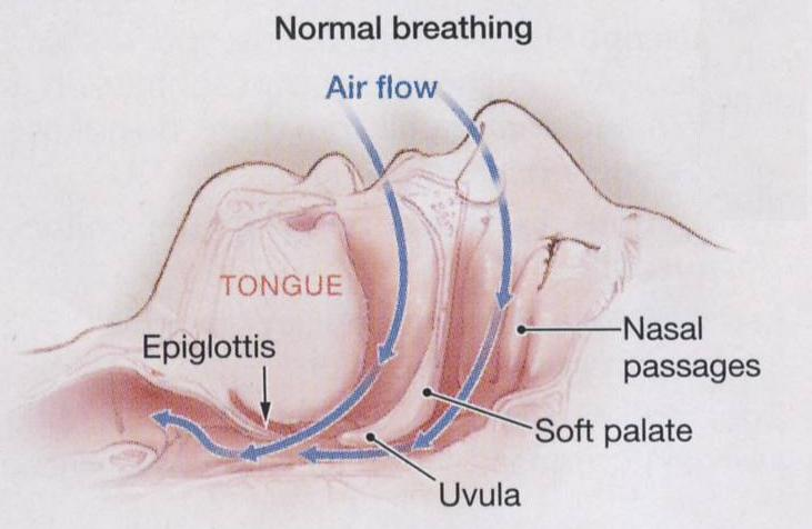 Breathing problems at night nose sleep apnea in preemie babies breathing problems at night nosedoes sleep deprivation help depressionfrequent urination before period step 3 ccuart Images