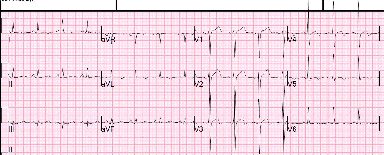 Dr. Smith's ECG Blog: Pseudo-Wellens' Syndrome due to Left ...