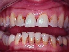 manchas dientes clorhexidina