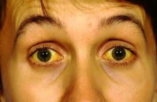 Ciri penyakit liver atau kuning