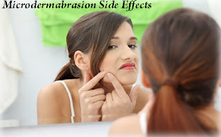 Patients and doctors alike consider microdermabrasion side effects is ...