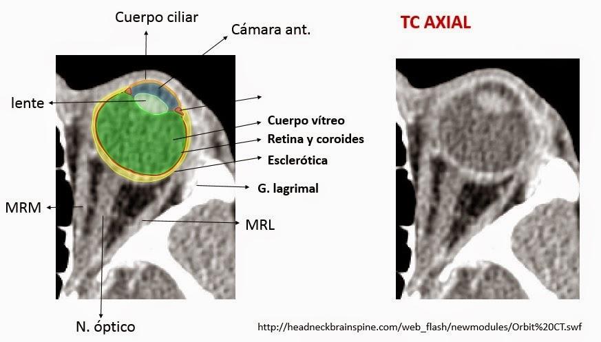 Anatomía y patologías de la cavidad orbitaria | ESPE 202 - 2014