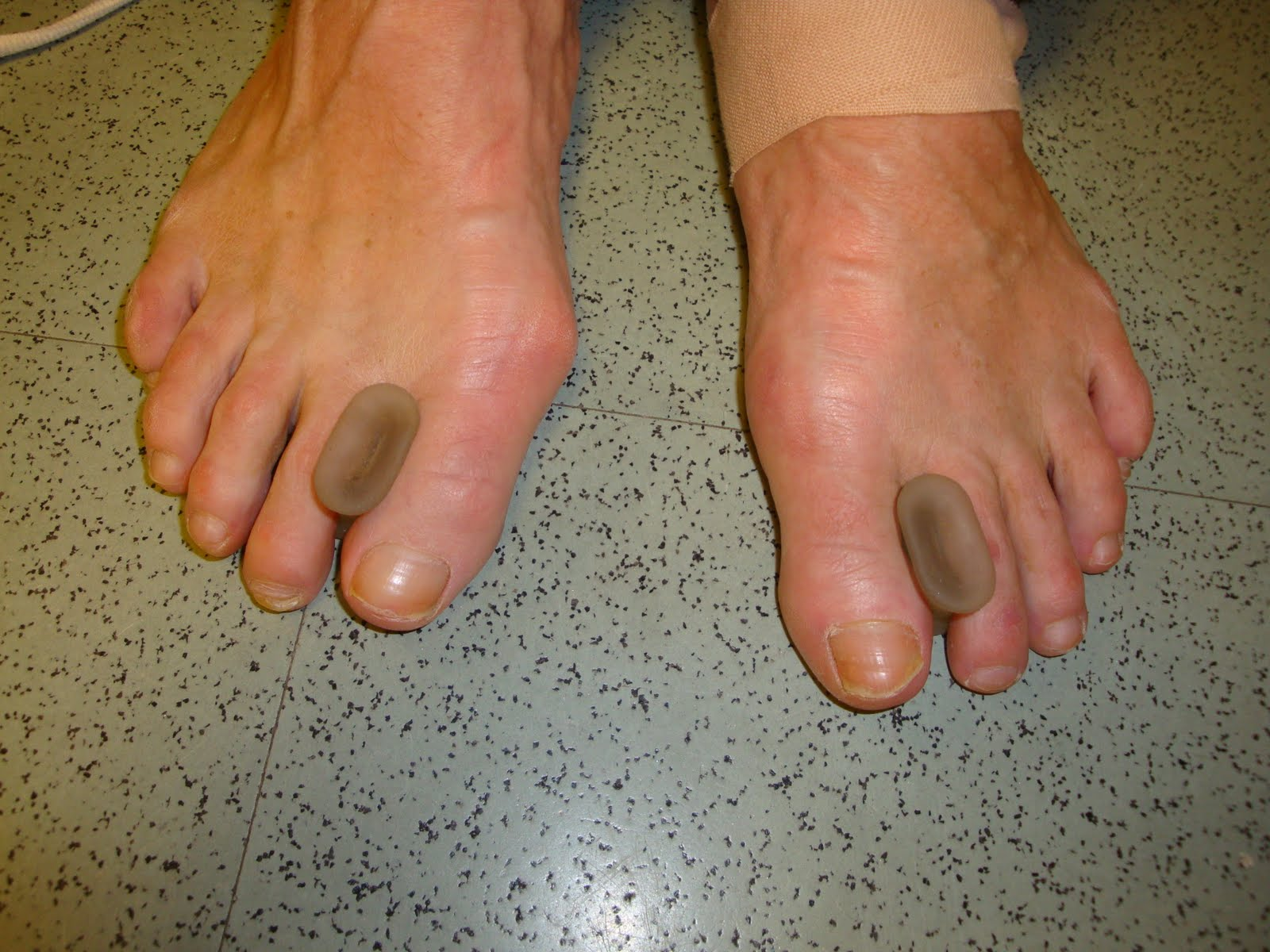 bunion pain vs gout
