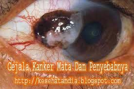 Gejala Kanker Mata Dan Penyebabnya