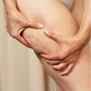 What is Cellulite and How is it Treated?