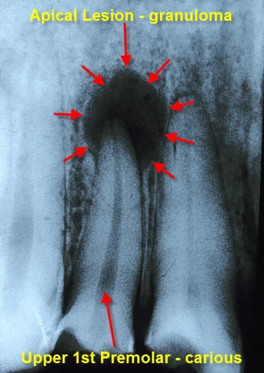 Periapical Abscess Radiograph