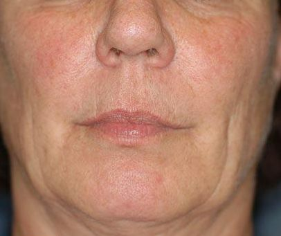 Face Exercises For Face Tightening: Does Your Face Have ...