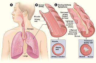 cara mengobati asma yang kambuh sampai sembuh secara alami