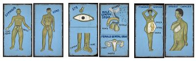Contents 1 Gono 2 Male Genital Organ Female 3 Breast Cancer 4 Syphilis 5 Eye Fistula Sore 6 Pregnant Woman