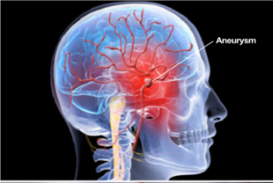 http://www.neurosurgerynow.com/aneurysms-of-brain.php