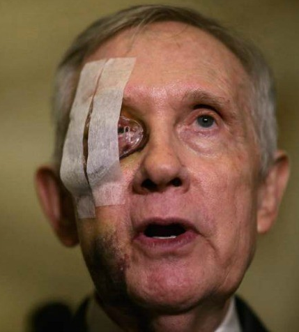 Senator Harry Reid exercise accident incident broken eye picture face photo