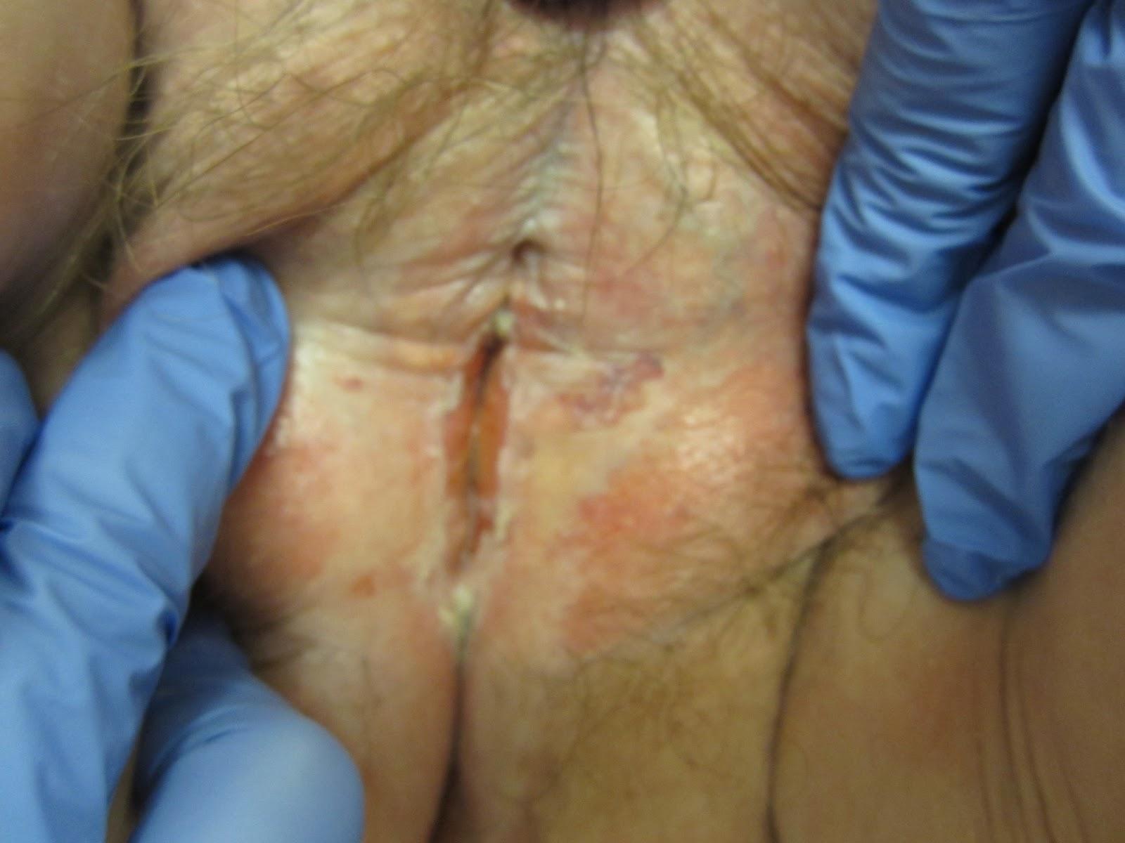 Viral skin infections | DermNet New Zealand