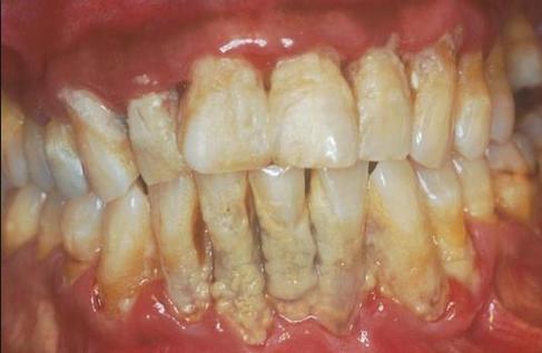 Permalink to Cara Menghilangkan Karang Gigi Warna Kuning