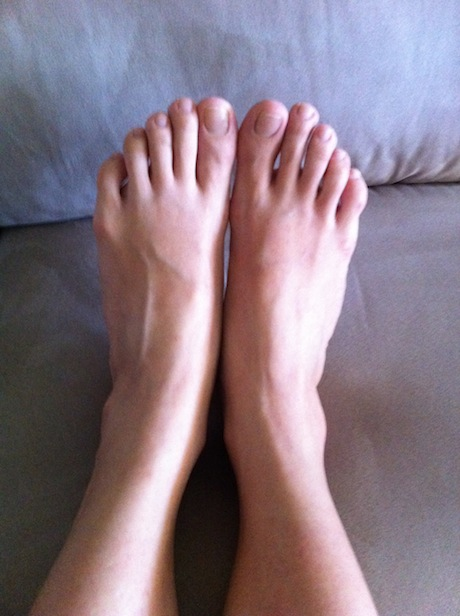 Swollen And Inflammed Feet 59