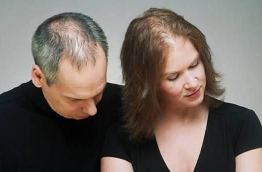 Tips Cara Mengatasi Rambut Rontok dengan Bahan Alami 2
