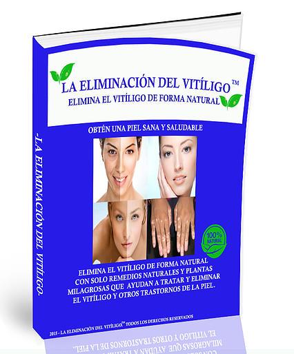Eliminación de Vitiligo