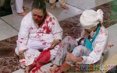 Korban jamaah haji Indonesia yang luka-luka