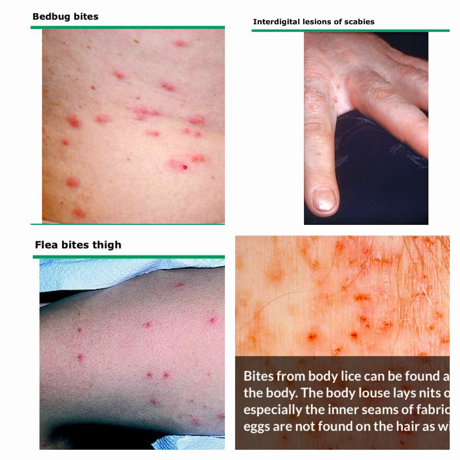 bed bug bites vs scabies 28 images bed bug bites
