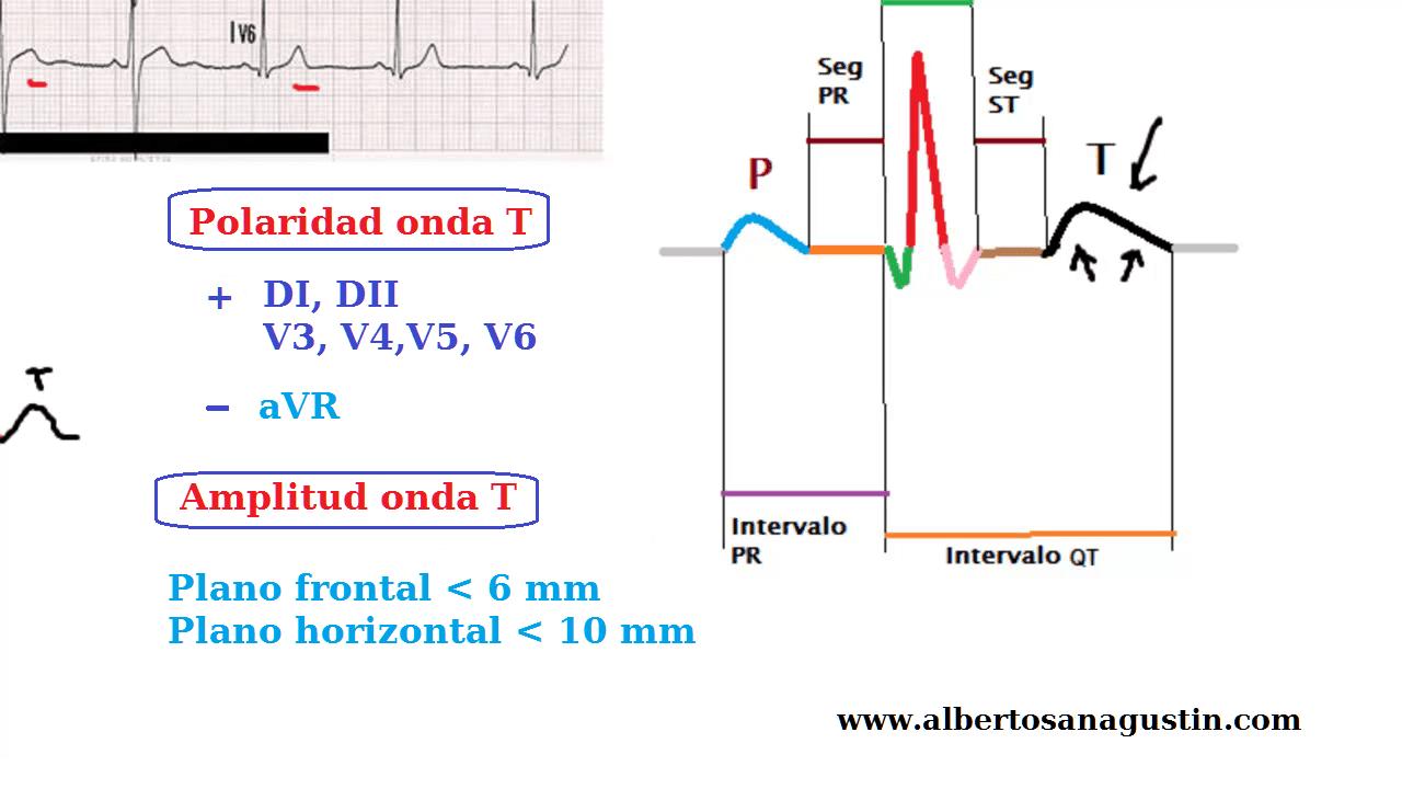 Electrocardiograma y onda T, polaridad y amplitud