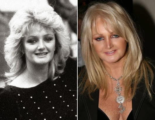 ... is Gaynor Hopkins, has been often accused of getting plastic surgery