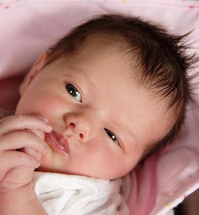 De que comienza la psoriasis a los niños