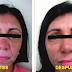 Remedio casero y efectivo para eliminar el Vitiligo