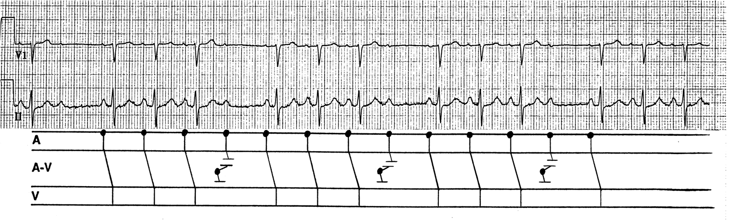 Dr  Smith U0026 39 S Ecg Blog  Pseudo Type Ii Second Degree Av Block Induced By Concealed Premature