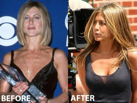 Breast job before after