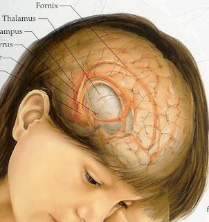 Obat Kanker Otak Alami Ampuh, obat kanker otak, pengobatan kanker otak